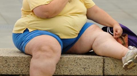 Morriston surgeon raises alarm for obesity problem in South Wales