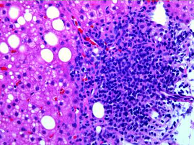 U.S. hepatitis C infections increased by three times in five years