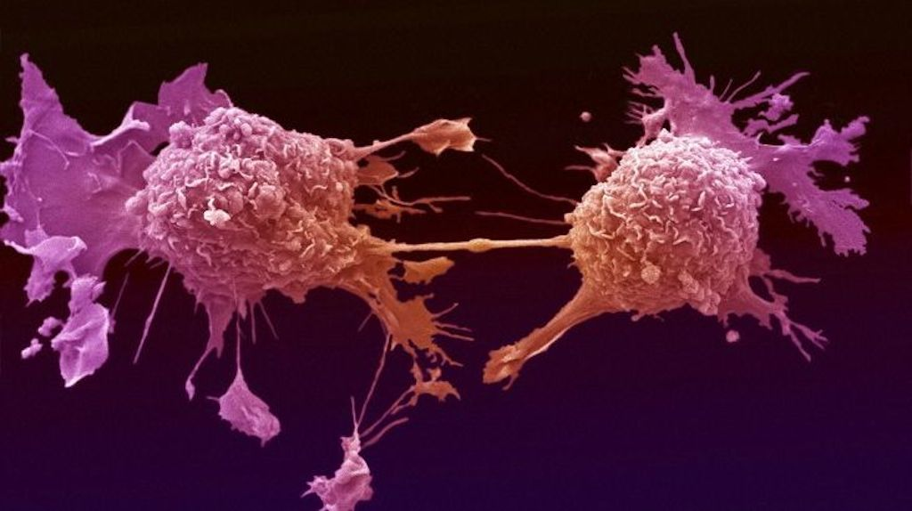 Signals that trigger cancer cells to spread identified Yeshiva University Researchers